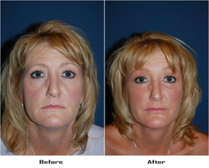 Eye lid surgery in Charlotte NC