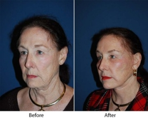 Facial cosmetic surgery in Charlotte NC