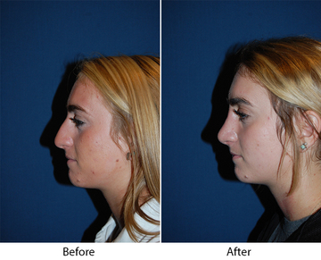 Nose Job Before And After Photos Can Show You Who Is The Best Charlotte Rhinoplasty Surgeon
