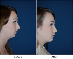 Teen rhinoplasty in Charlotte NC