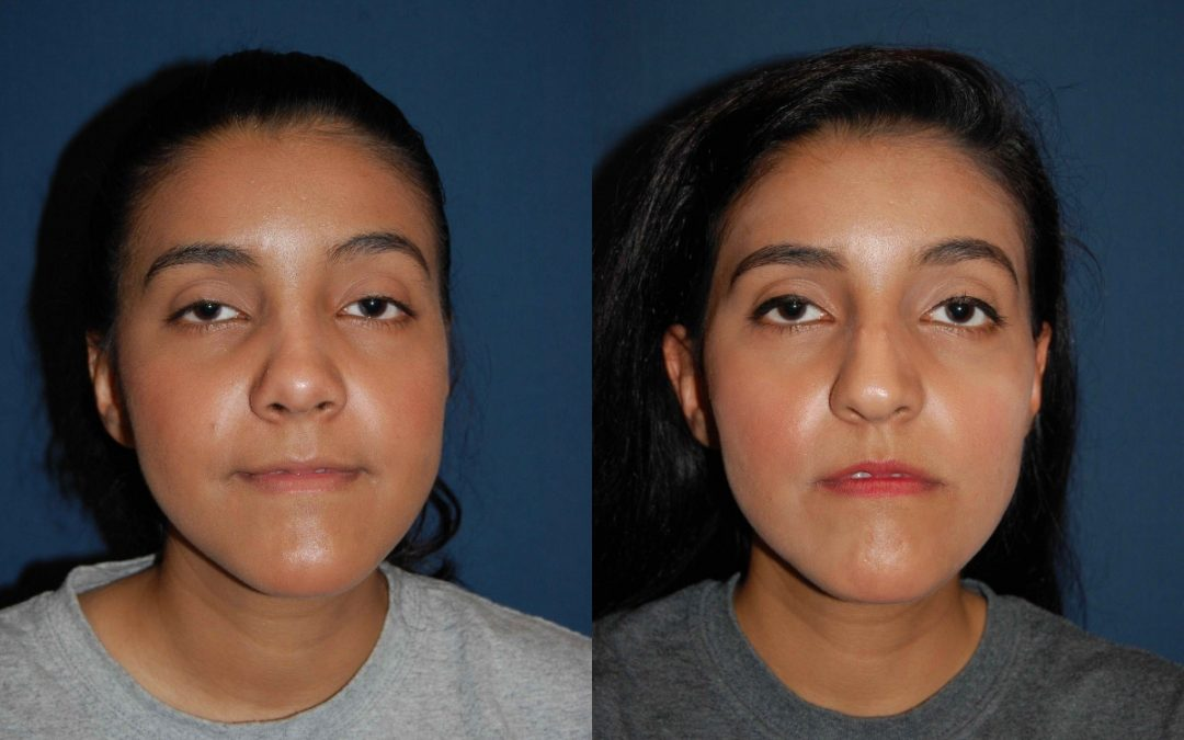 Solve your breathing problems with rhinoplasty in Charlotte