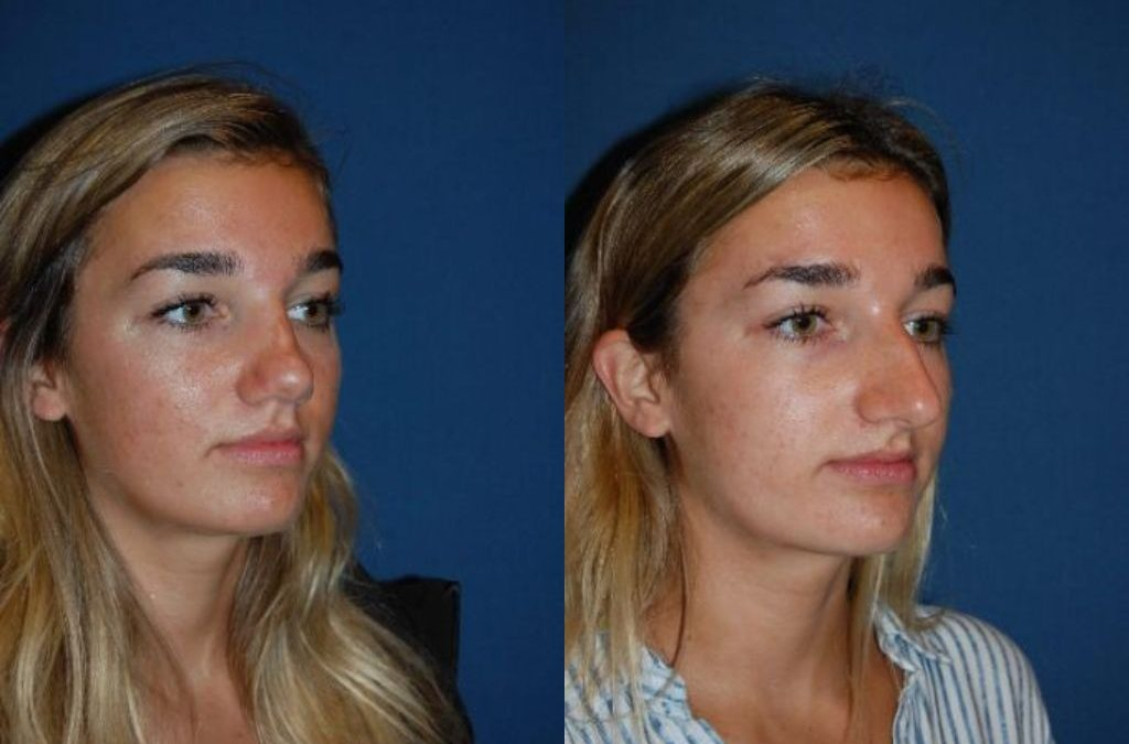 Rhinoplasty is a nose procedure that can be done in Charlotte, NC