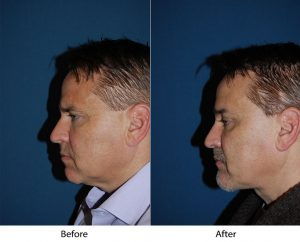 Help me find the top rhinoplasty surgeon in Charlotte NC