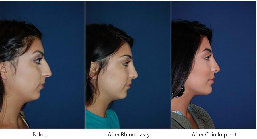 Rhinoplasty in Charlotte for aesthetic or breathing purposes